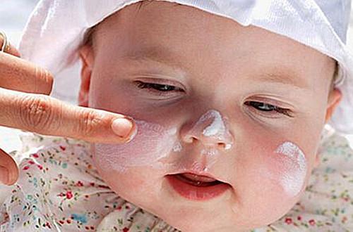 宝宝皮肤过敏怎么办 如何预防宝宝皮肤过敏